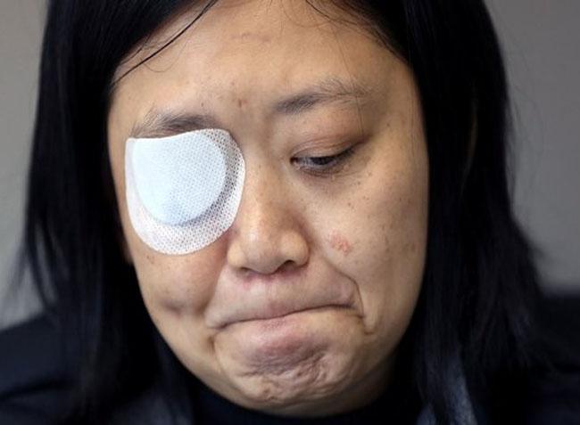 Veby Mega Indah, jurnalis asal Indonesia yang mata kanannya tertembak peluru polisi Hong Kong.