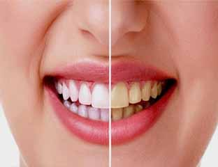 Putihkan Gigi Dalam Waktu 15 Menit Dengan Cara Mudah Ini