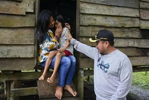 Bupati Kampar, Catur Sugeng Susanto melihat kondisi Ananda Kasriani yang didiagnosa menderita Penyakit Tumor Mata.